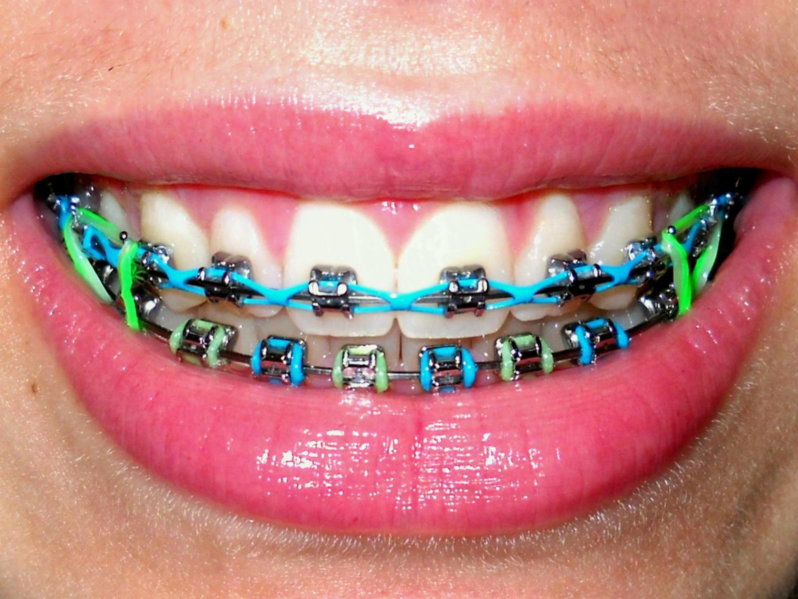 музыку фото металлических брекетов на зубах предлагаем уютные удобные