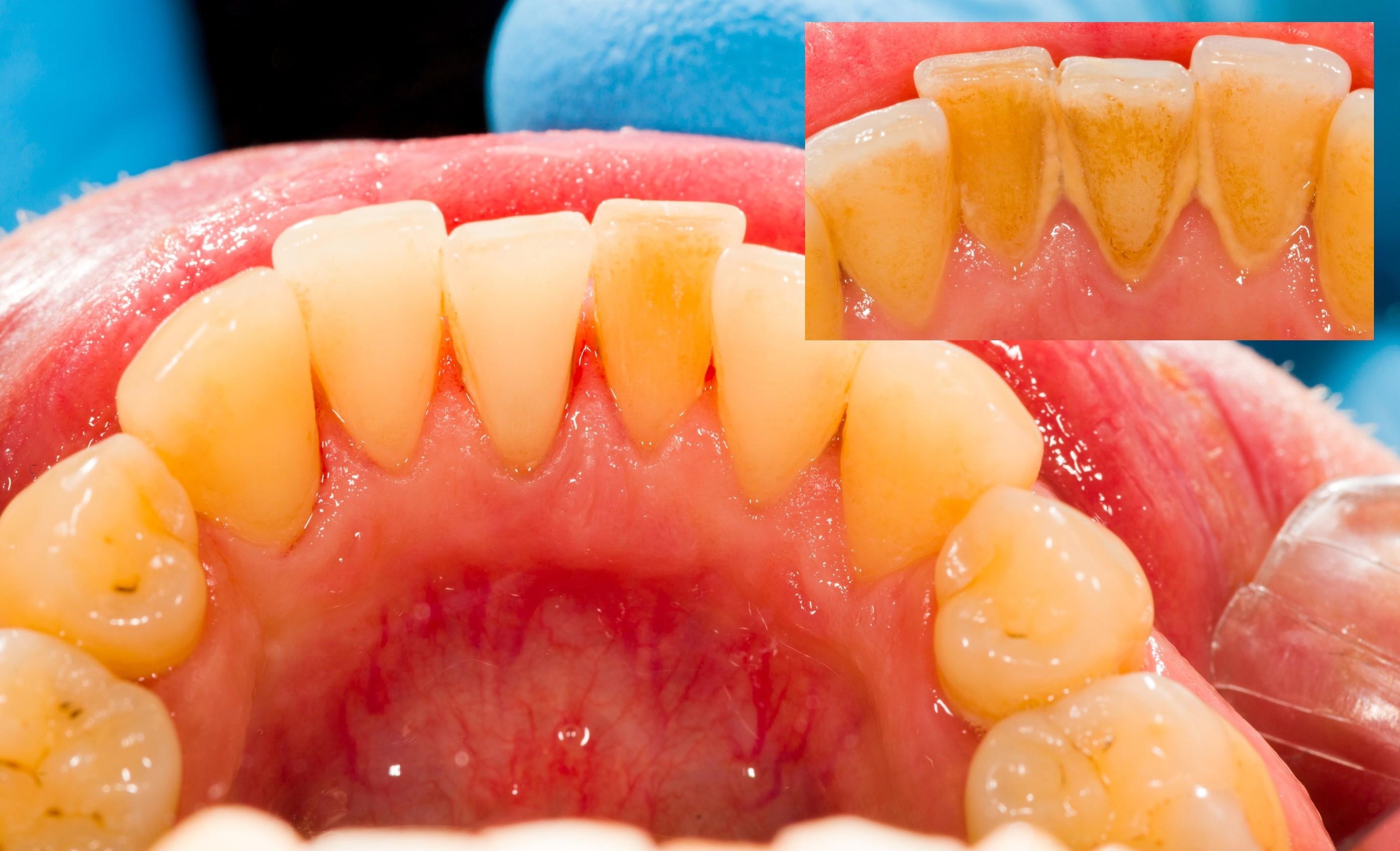 Картинки зубных отложений